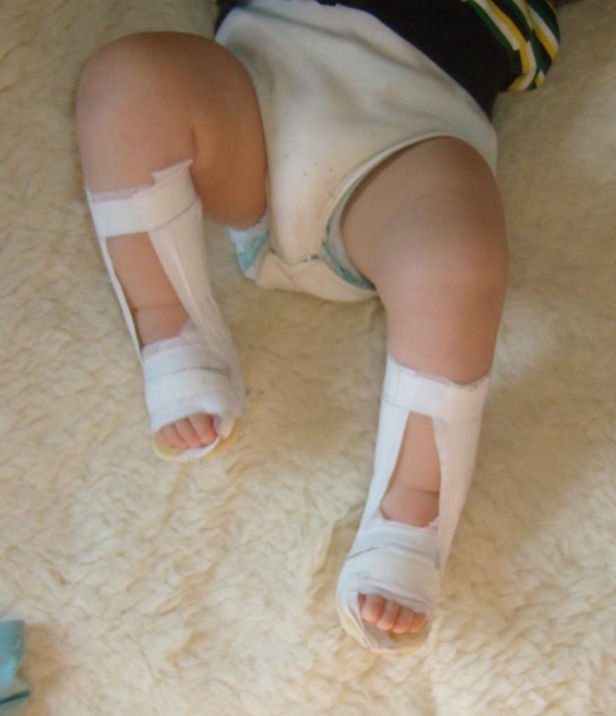 Che trattare varicosity sulla gamba sinistra