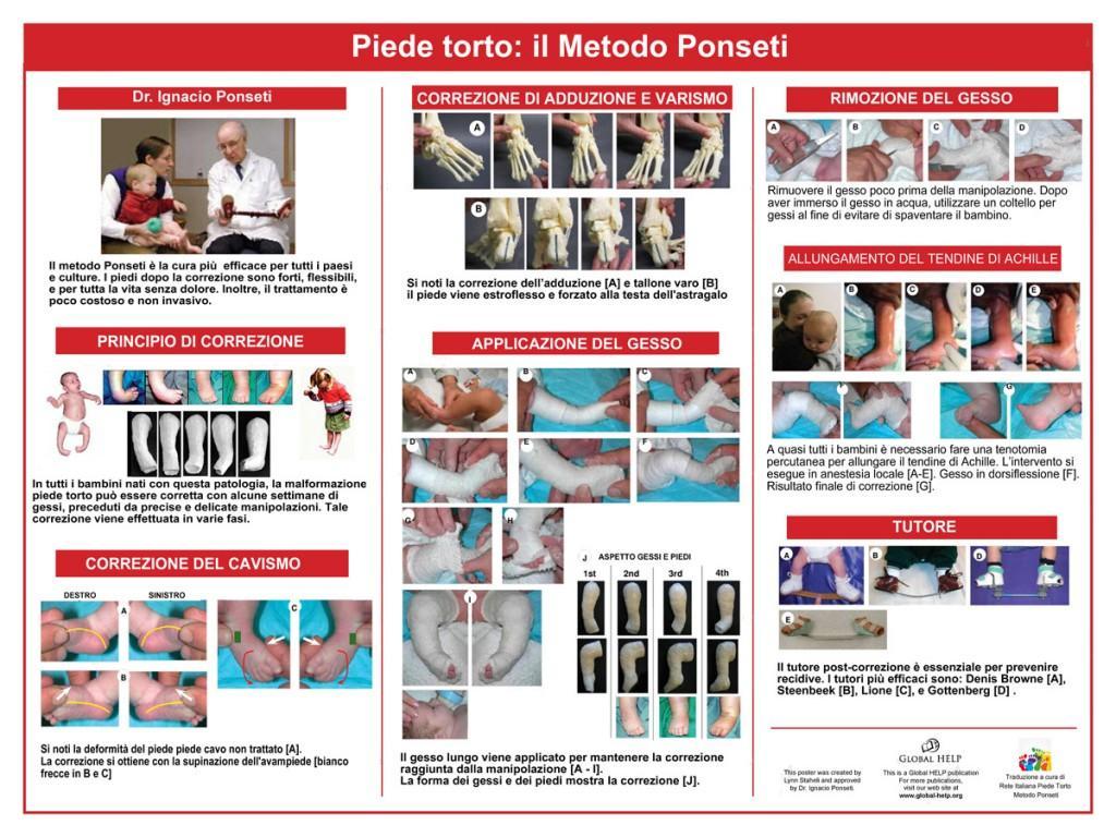 ponseti poster_ita_1200