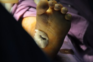 bangladesh clubfoot 53