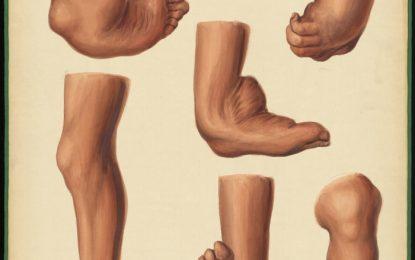 Memoria chirurgica sui piedi torti congeniti dei fanciulli, e sulla maniera di correggere questa deformità (Antonio Scarpa-1806)