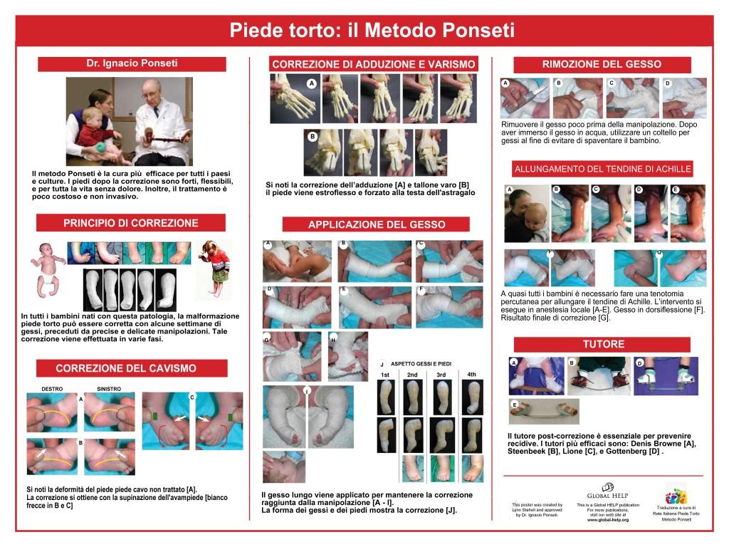 ponseti poster_ita_7200x5400