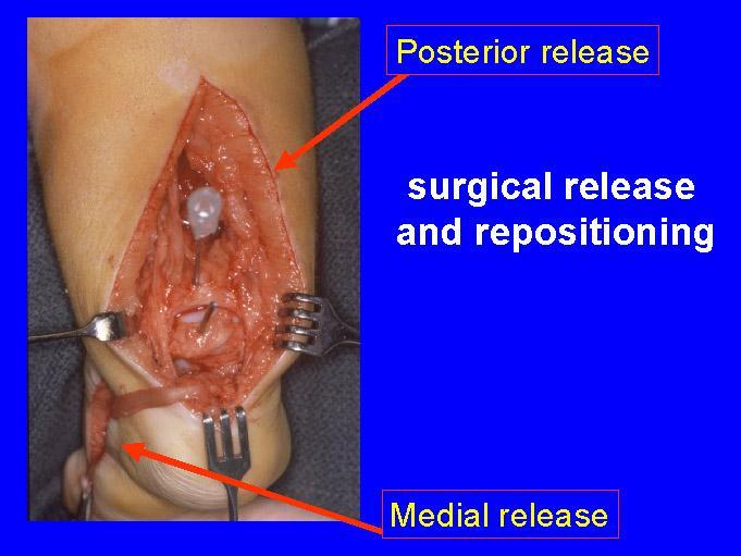 posteromedial release
