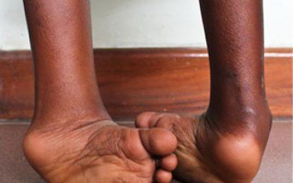 Trattamento, con il metodo Ponseti, del piede torto idiopatico non trattato: risultati preliminari di uno studio multicentrico in Nigeria